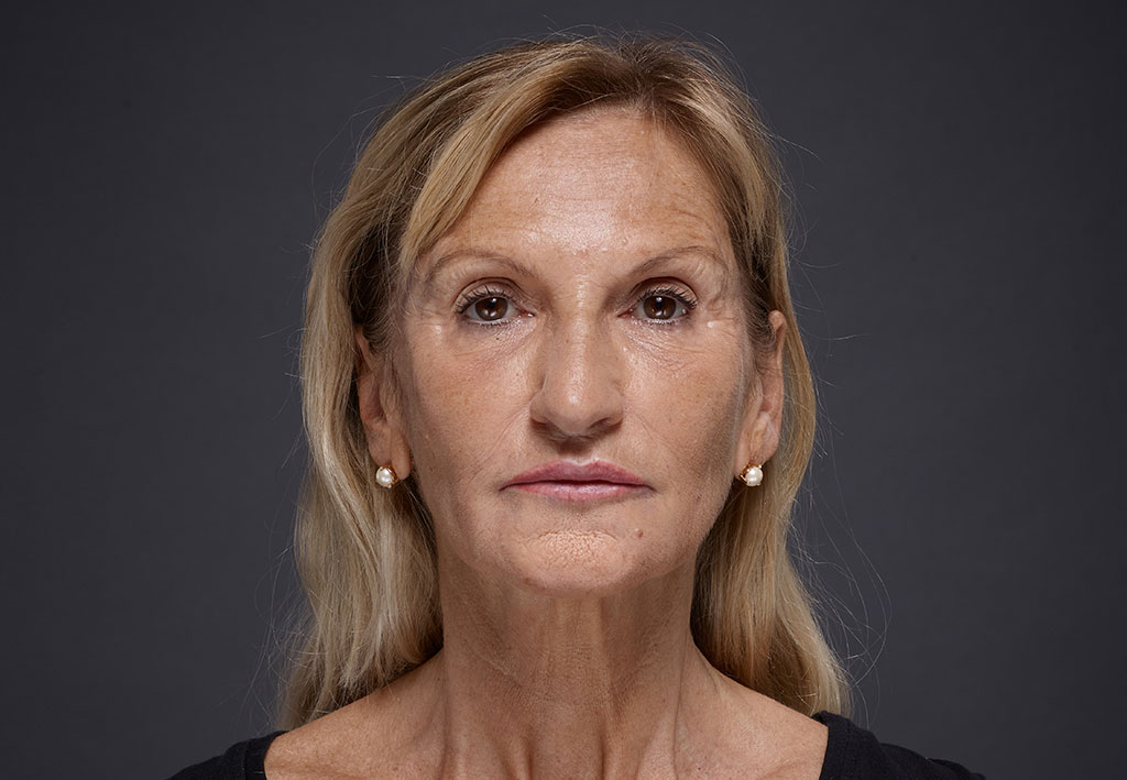 Blond woman face with brown eyes on grey background | Fillmed