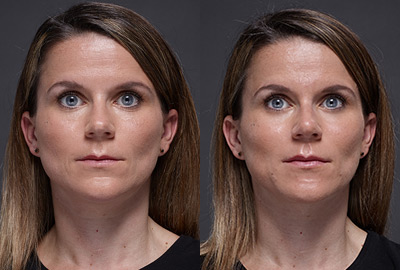 Before After Woman face with blue eyes on grey background | Fillmed