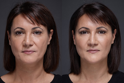 Before After woman face on grey background | Fillmed