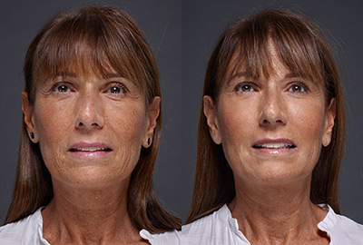 Before After Woman face with brown eyes on grey background | Fillmed